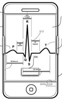 iPhone-EKG1-178x300